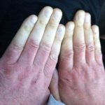 Hand Arm Vibration – Act Now!